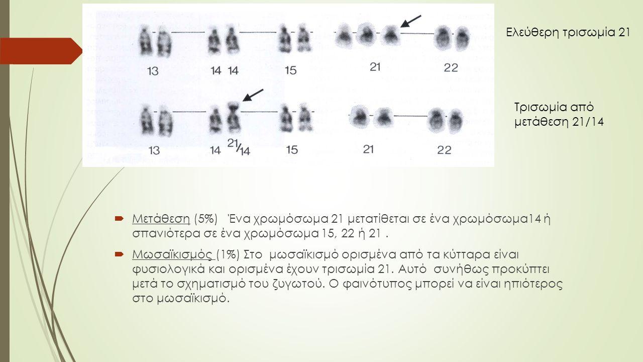 Ελεύθερη τρισωμία 21 Τρισωμία από μετάθεση 21/14