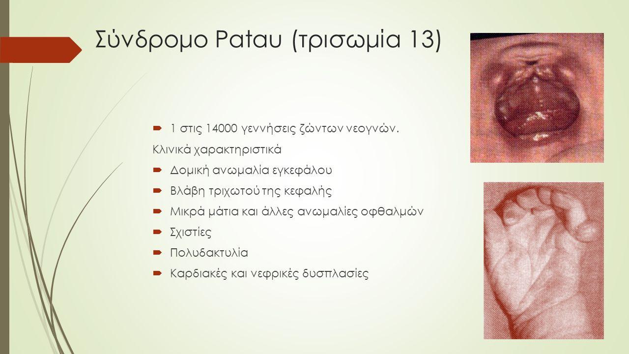 Σύνδρομο Patau (τρισωμία 13)