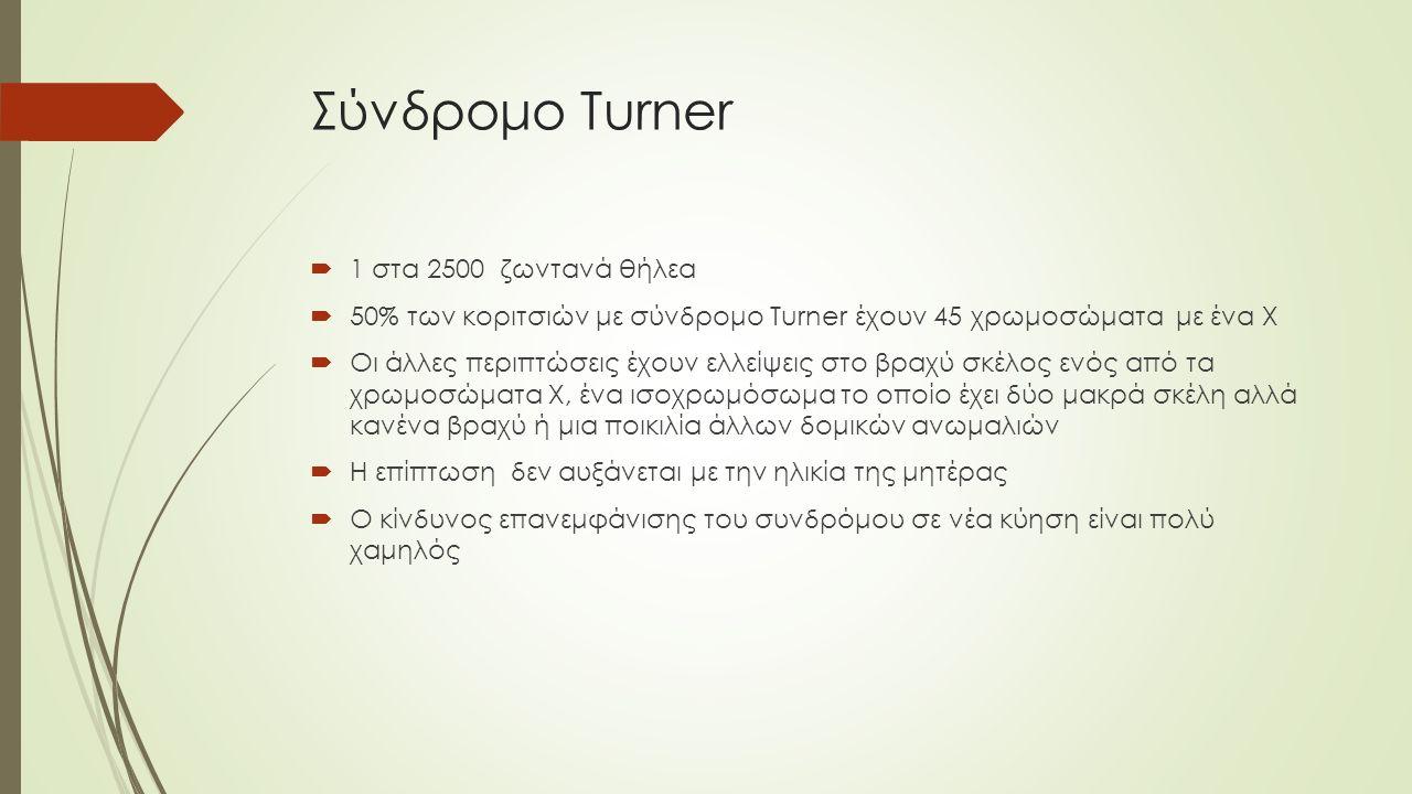 Σύνδρομο Turner 1 στα 2500 ζωντανά θήλεα