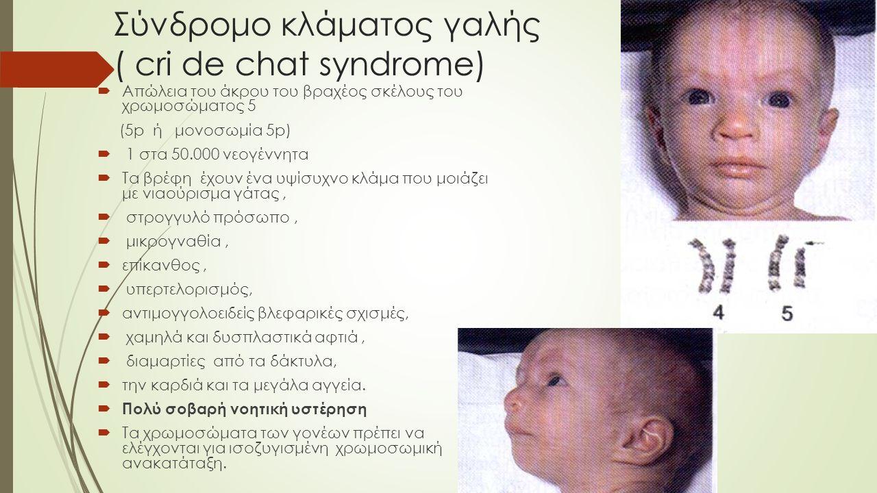Σύνδρομο κλάματος γαλής ( cri de chat syndrome)