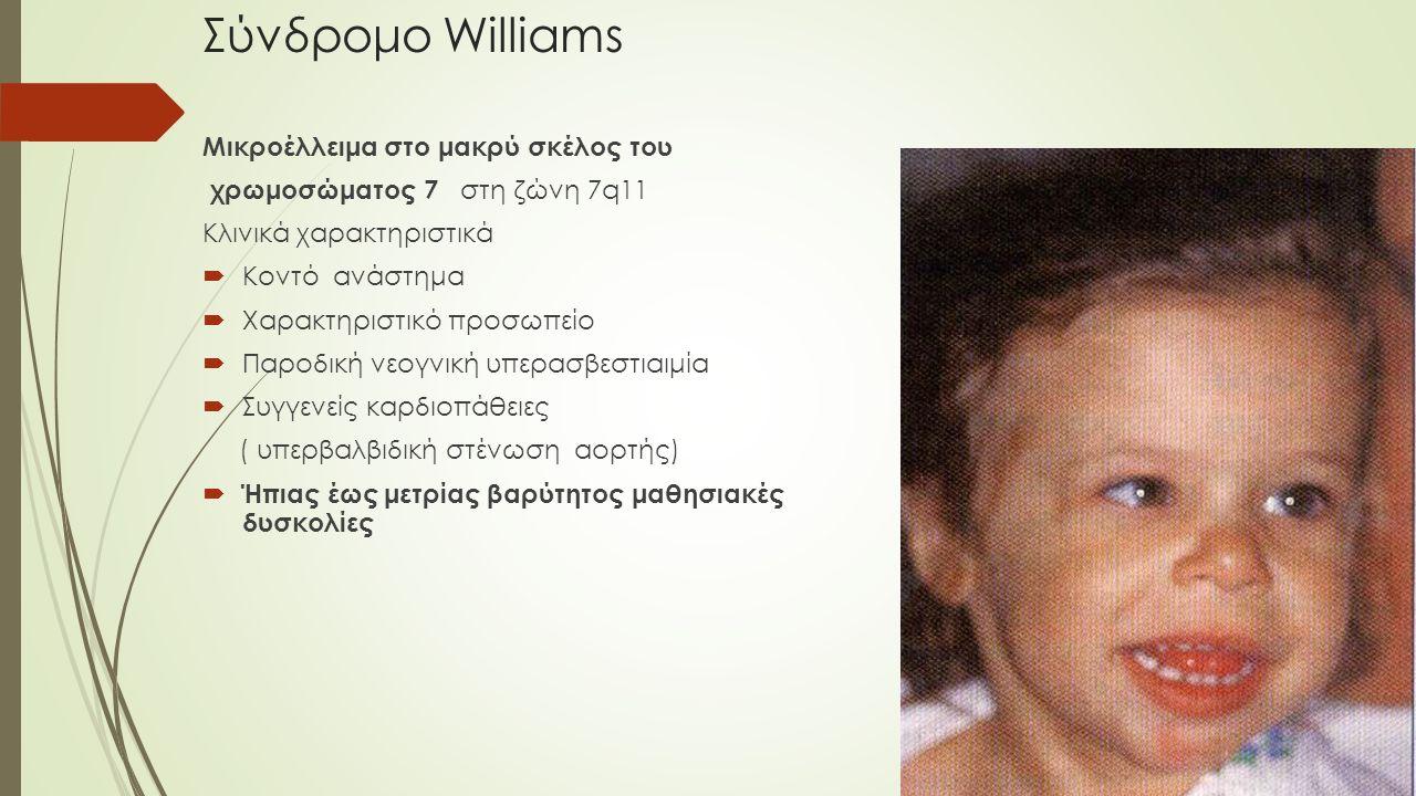 Σύνδρομο Williams Μικροέλλειμα στο μακρύ σκέλος του