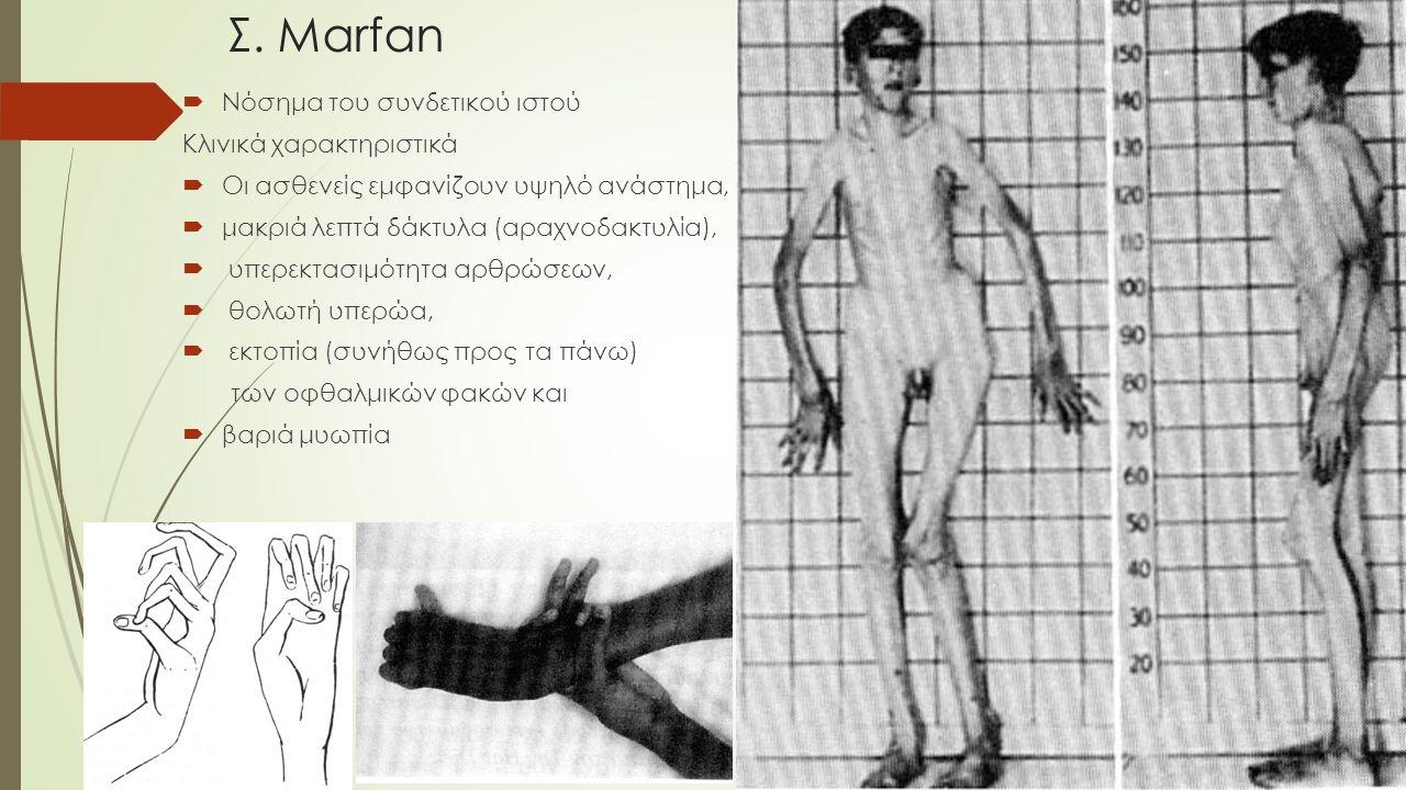 Σ. Marfan Νόσημα του συνδετικού ιστού Κλινικά χαρακτηριστικά