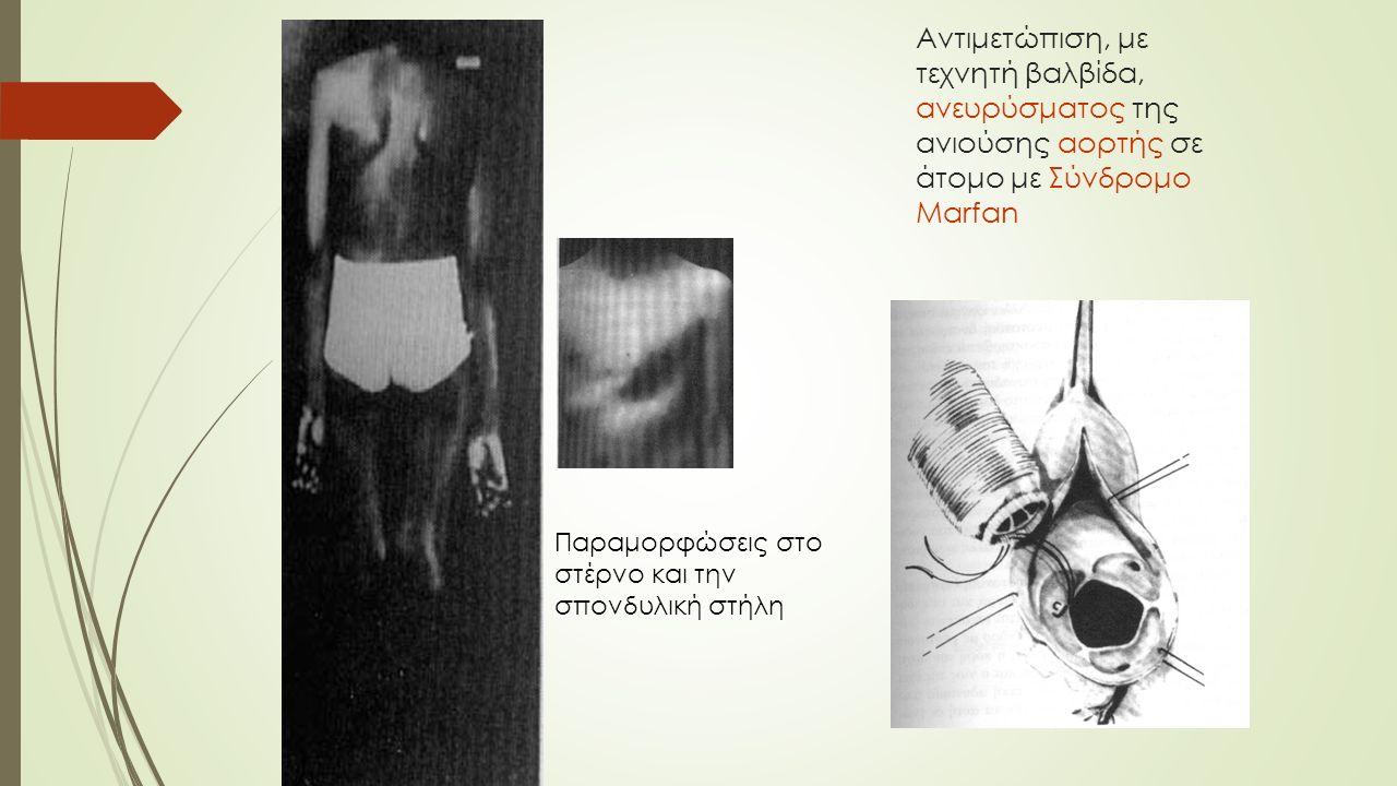 Αντιμετώπιση, με τεχνητή βαλβίδα, ανευρύσματος της ανιούσης αορτής σε άτομο με Σύνδρομο Marfan