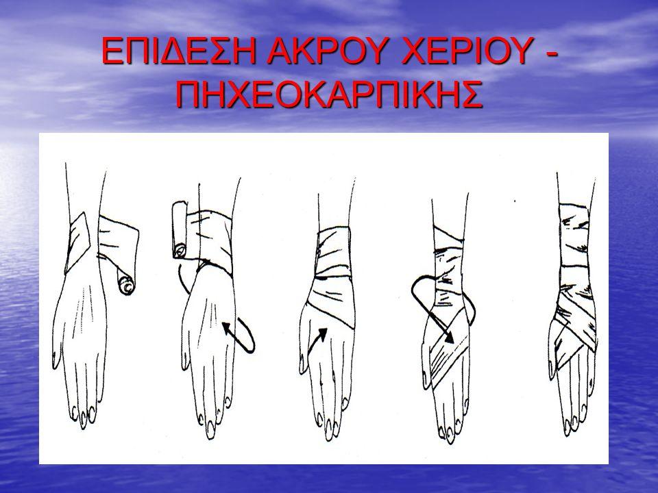 ΕΠΙΔΕΣΗ ΑΚΡΟΥ ΧΕΡΙΟΥ - ΠΗΧΕΟΚΑΡΠΙΚΗΣ