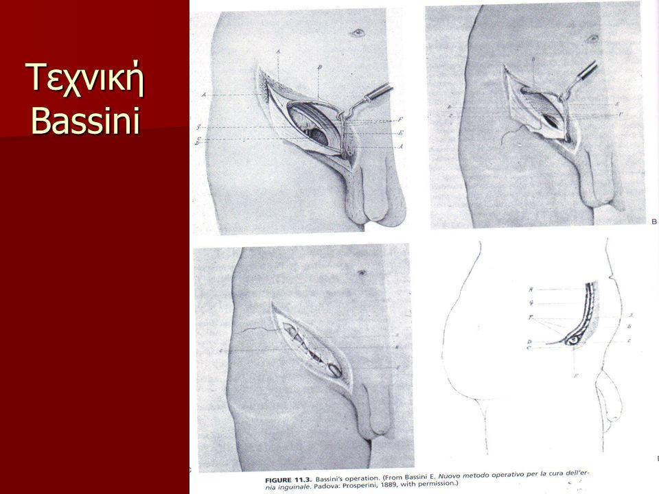 Τεχνική Bassini