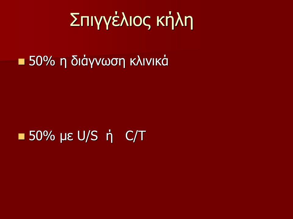 Σπιγγέλιος κήλη 50% η διάγνωση κλινικά 50% με U/S ή C/T