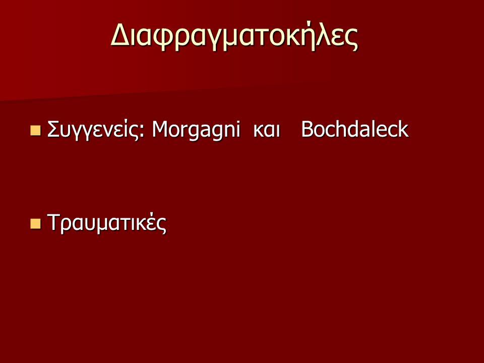 Διαφραγματοκήλες Συγγενείς: Morgagni και Bochdaleck Τραυματικές