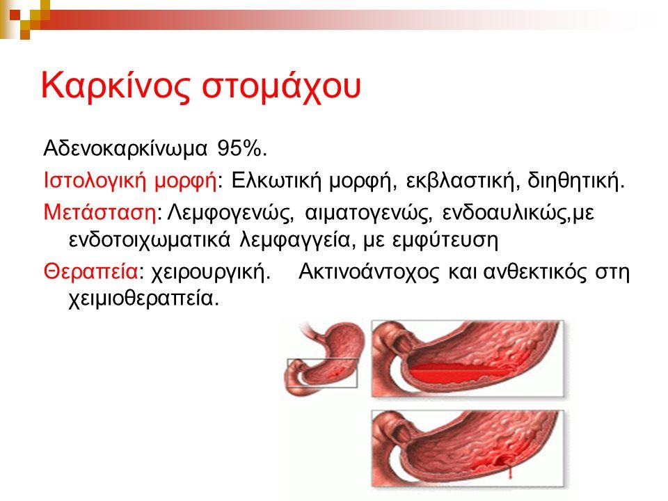 Καρκίνος στομάχου
