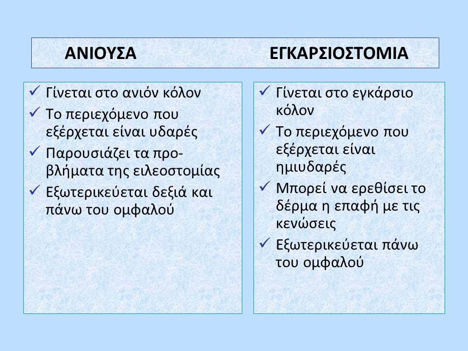 ΑΝΙΟΥΣΑ ΕΓΚΑΡΣΙΟΣΤΟΜΙΑ