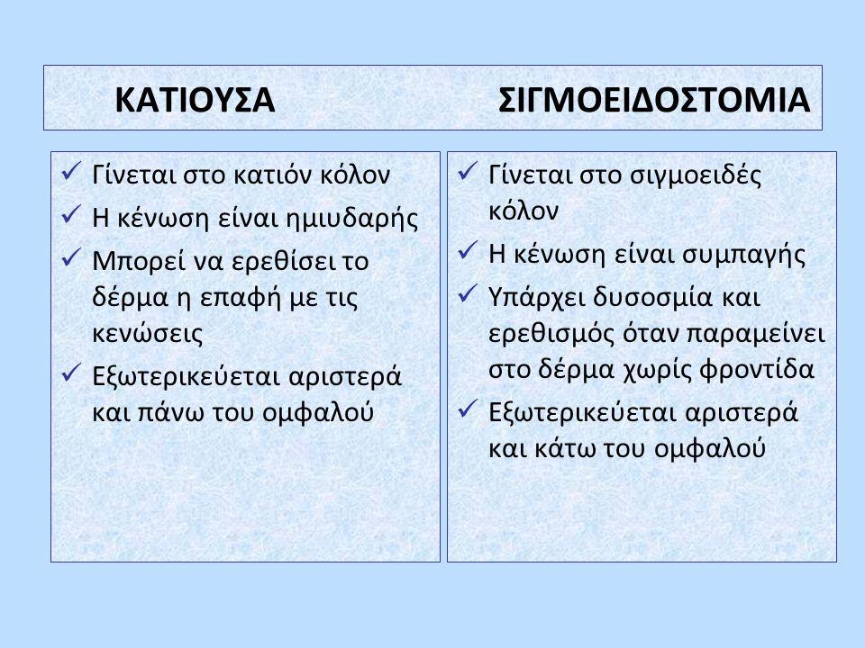 ΚΑΤΙΟΥΣΑ ΣΙΓΜΟΕΙΔΟΣΤΟΜΙΑ