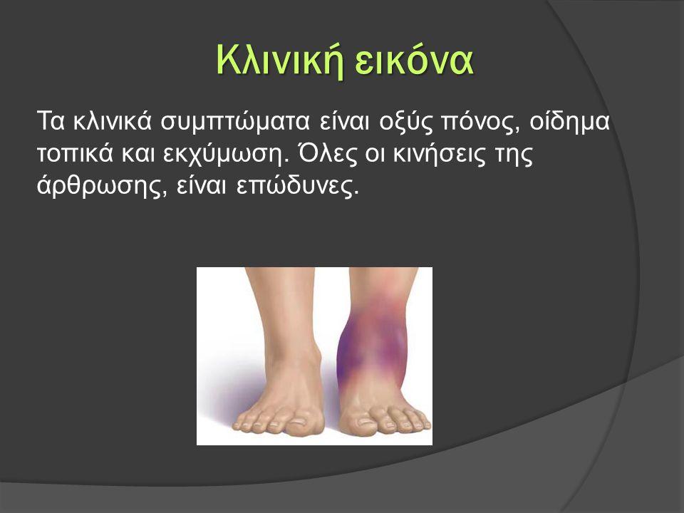 Κλινική εικόνα Τα κλινικά συμπτώματα είναι οξύς πόνος, οίδημα τοπικά και εκχύμωση.