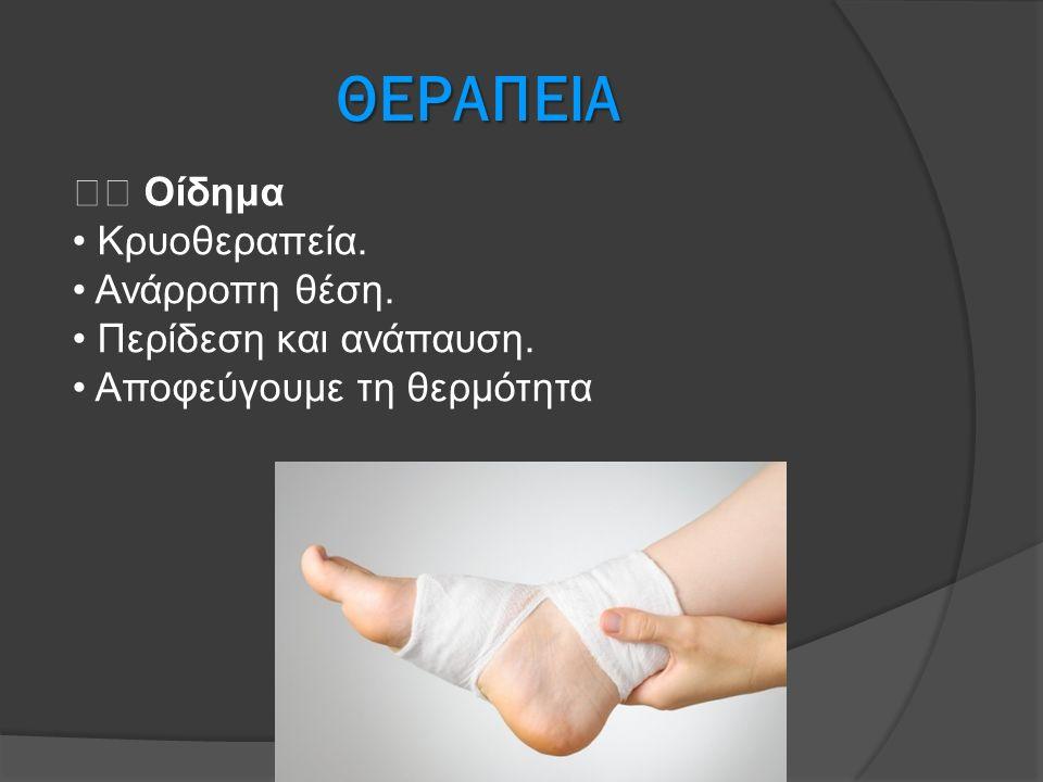 ΘΕΡΑΠΕΙΑ  Οίδημα • Κρυοθεραπεία. • Ανάρροπη θέση.