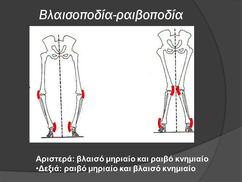 Βλαισοποδία-ραιβοποδία