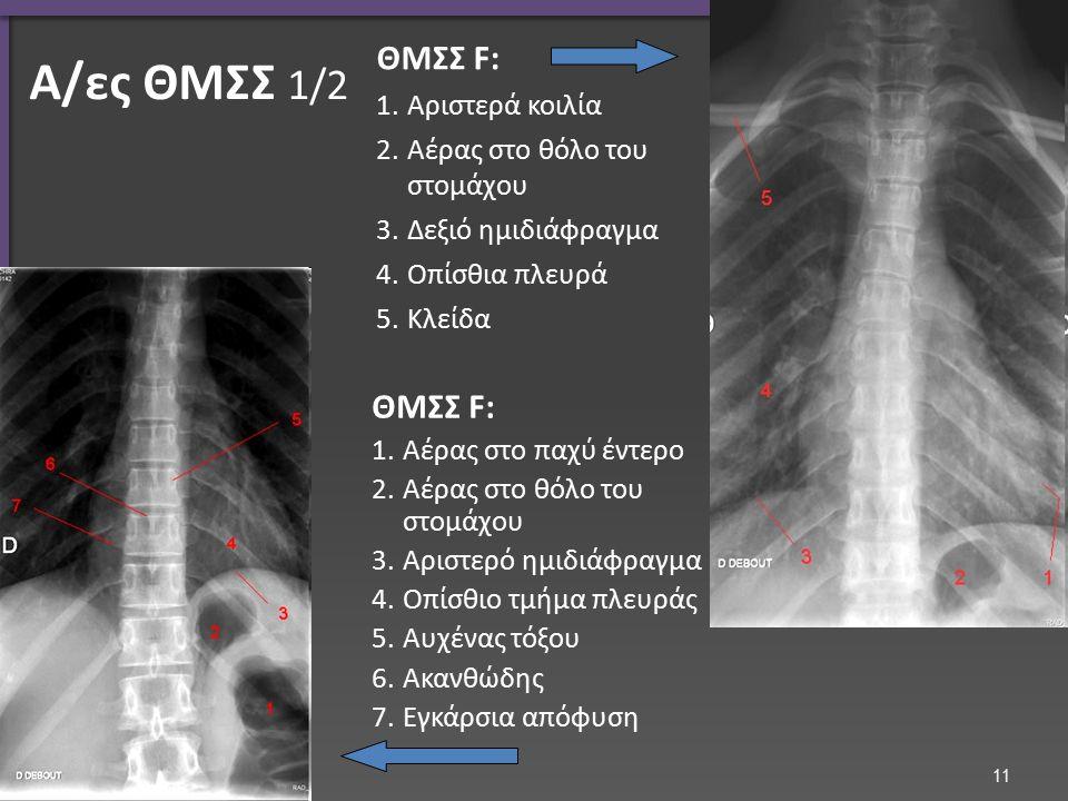 Α/ες ΘΜΣΣ 2/2 Πλαγία λήψη ΘΜΣΣ Οπίσθιο τμήμα πλευράς Vertebral body
