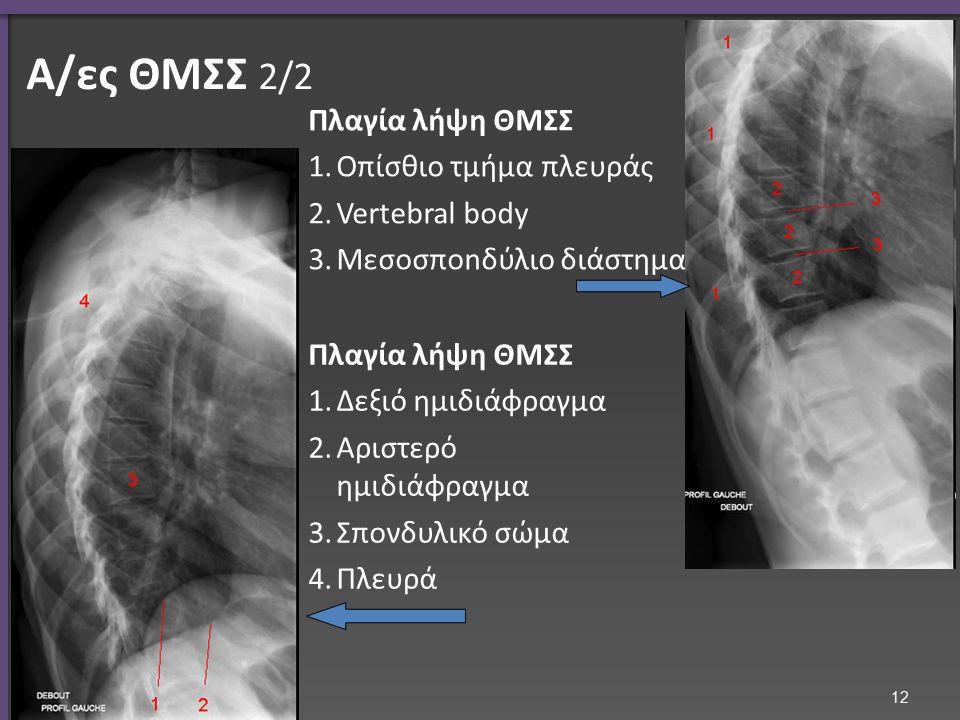 Α/α πλάγια ΘΜΣΣ Κλείδα Αυχένας Μεσοσπονδύλιος διάστημα Σπονδυλικό σώμα