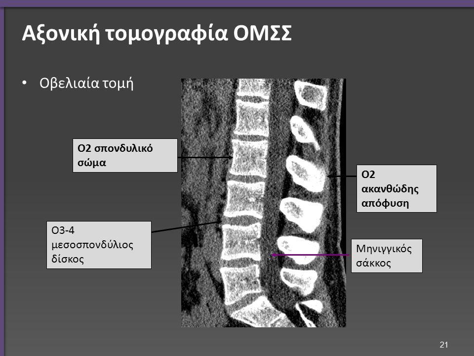 Μαγνητική τομογραφία ΟΜΣΣ μέση οβελιαία τομή
