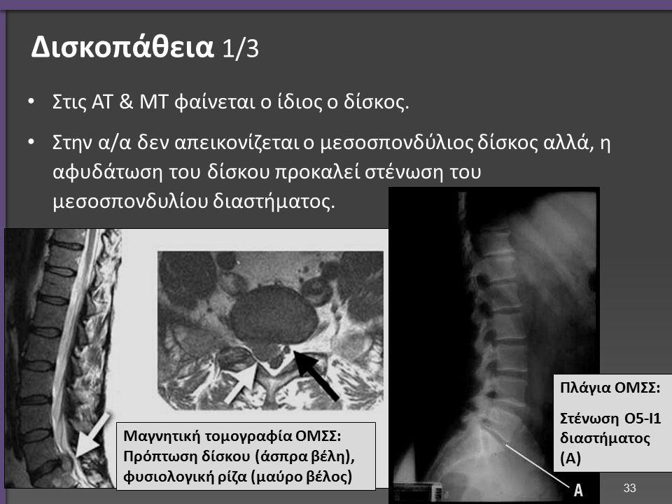 Δισκοπάθεια 2/3 Μαγνητική τομογραφία ΑΜΣΣ: πρόπτωση δίσκου Α5-6 με πίεση του νωτιαίου μυελού.