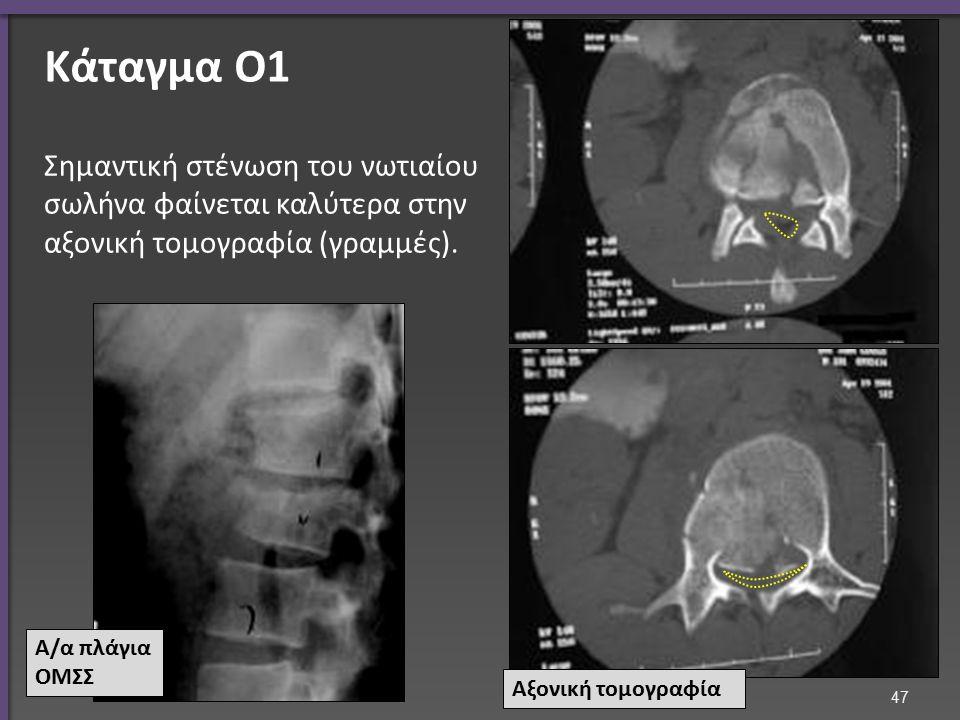 Τραύμα ΟΜΣΣ Χειρουργική σταθεροποίηση