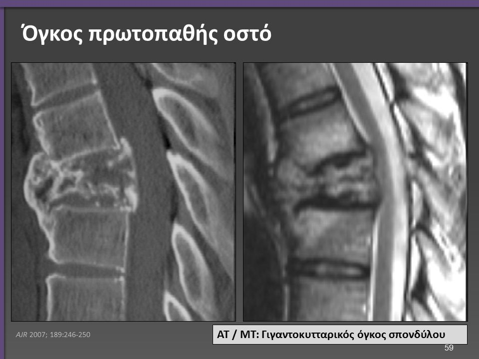 Όγκοι νευρικού ιστού Πρωτοπαθής ΜΤ ΑΜΣΣ: επενδύμωμα (λευκό)