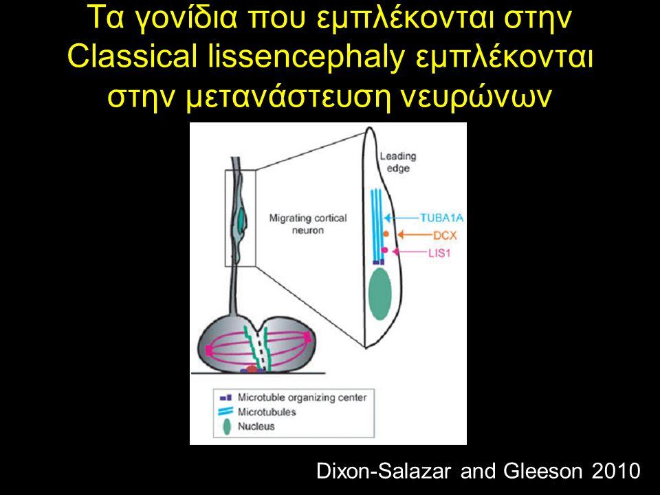 Τα γονίδια που εμπλέκονται στην Classical lissencephaly εμπλέκονται στην μετανάστευση νευρώνων
