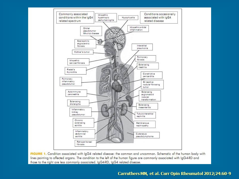 Carruthers MN, et al. Curr Opin Rheumatol 2012;24:60-9