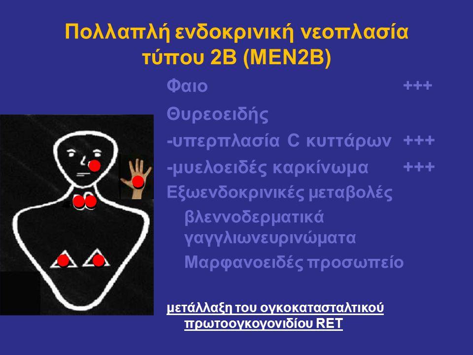 Πολλαπλή ενδοκρινική νεοπλασία τύπου 2Β (MEN2Β)