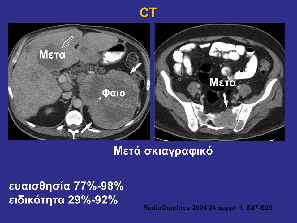 RadioGraphics 2004 24:suppl_1, S87-S99
