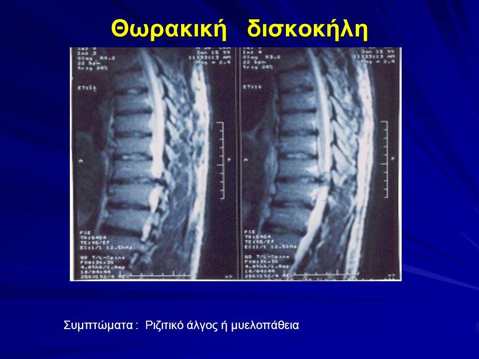 Θωρακική δισκοκήλη Συμπτώματα : Ριζιτικό άλγος ή μυελοπάθεια