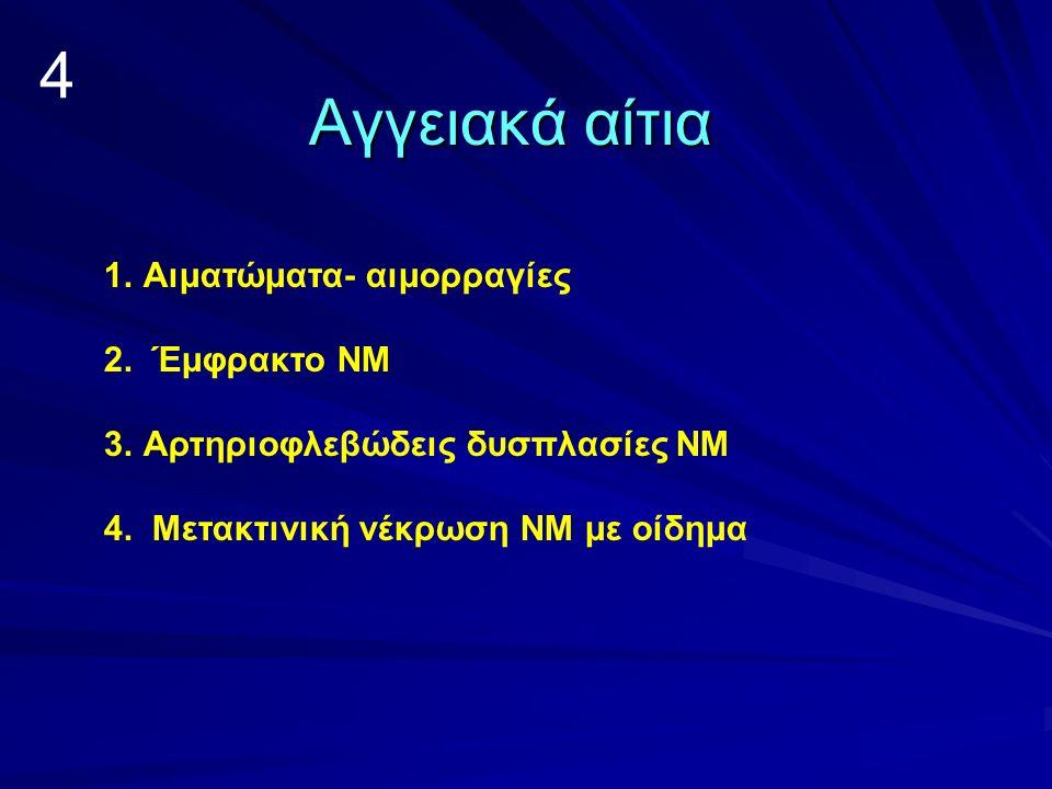4 Αγγειακά αίτια Αιματώματα- αιμορραγίες 2. Έμφρακτο ΝΜ
