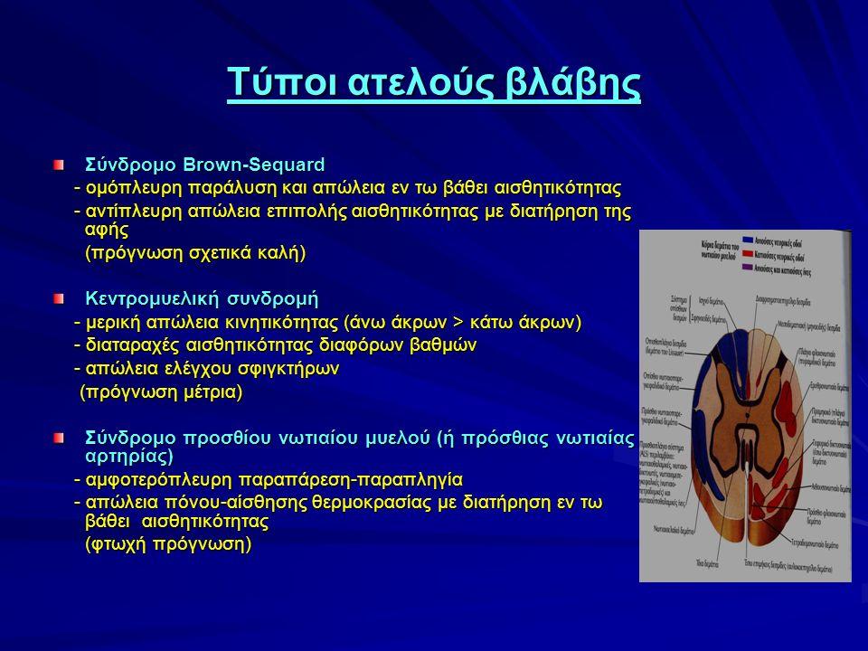 Τύποι ατελούς βλάβης Σύνδρομο Brown-Sequard