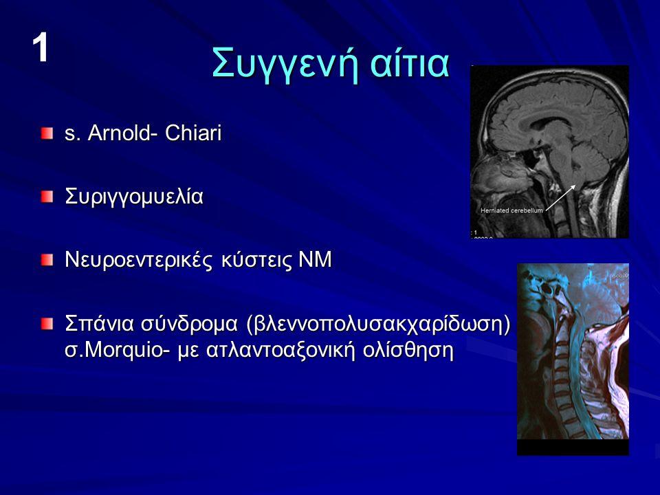 1 Συγγενή αίτια s. Arnold- Chiari Συριγγομυελία