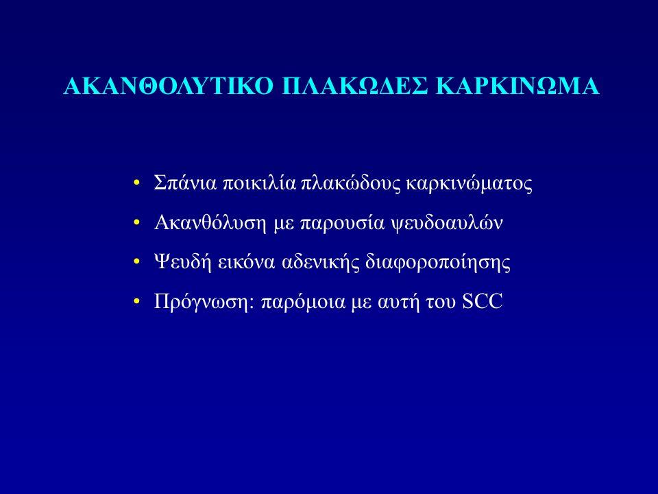 ΑΚΑΝΘΟΛΥΤΙΚΟ ΠΛΑΚΩΔΕΣ ΚΑΡΚΙΝΩΜΑ