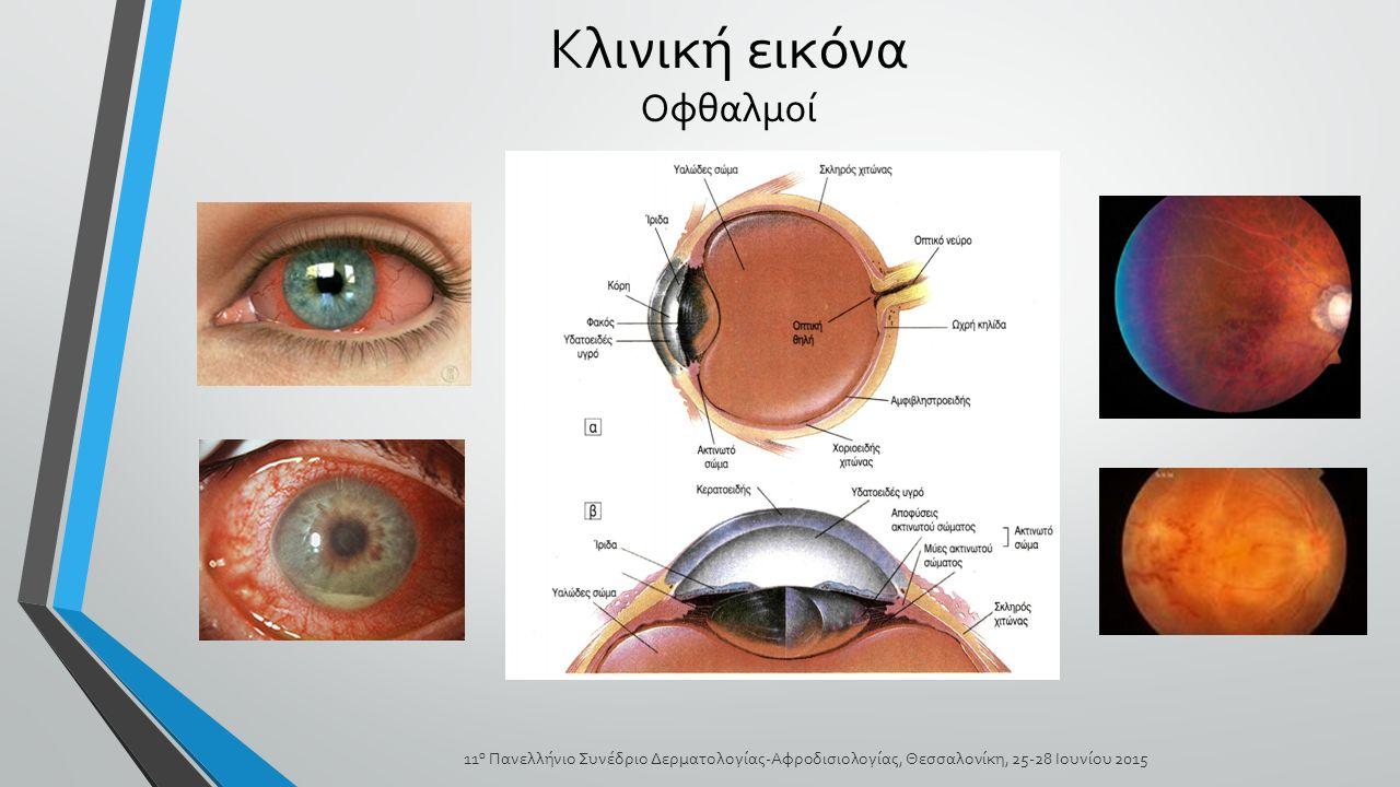 Κλινική εικόνα Οφθαλμοί