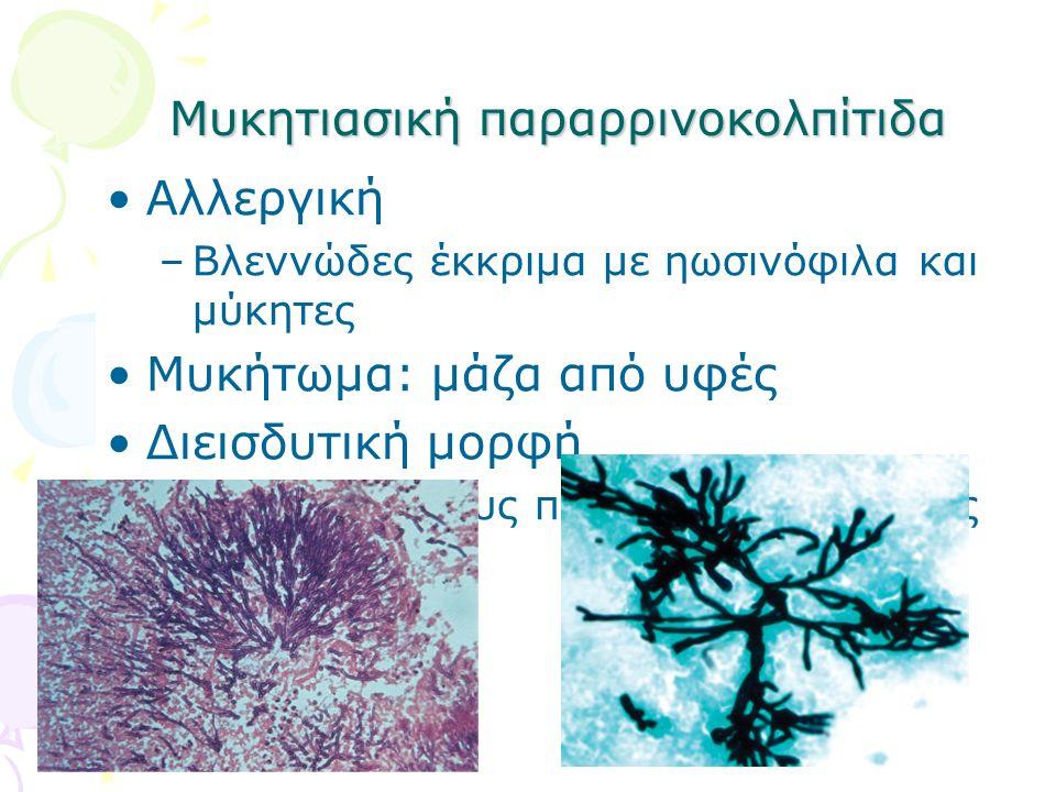 Μυκητιασική παραρρινοκολπίτιδα