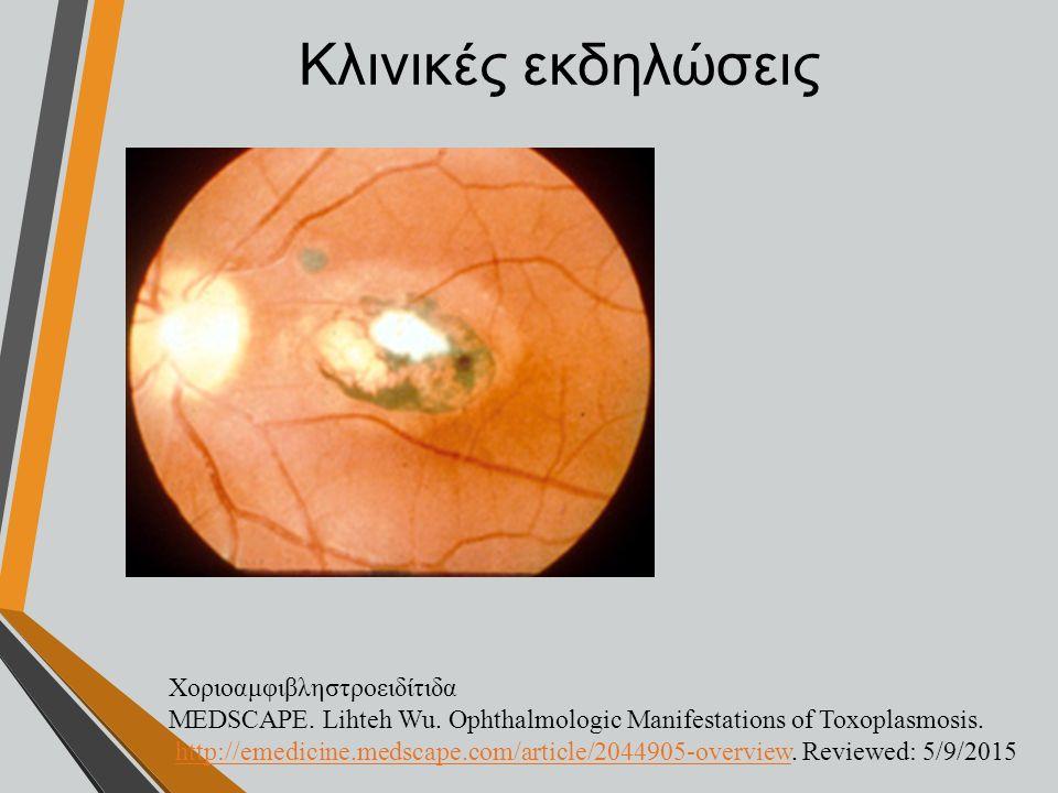 Κλινικές εκδηλώσεις Χοριοαμφιβληστροειδίτιδα