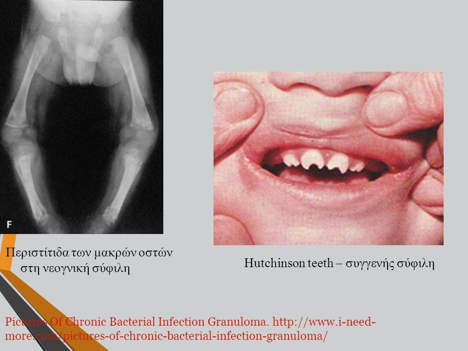 Hutchinson teeth – συγγενής σύφιλη