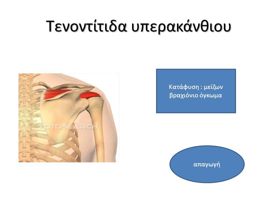 Τενοντίτιδα υπερακάνθιου