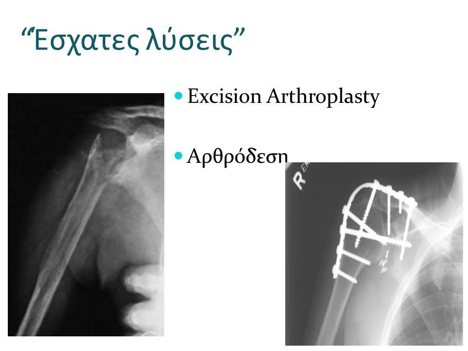 Έσχατες λύσεις Excision Arthroplasty Αρθρόδεση