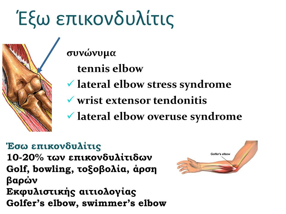Έξω επικονδυλίτις tennis elbow lateral elbow stress syndrome