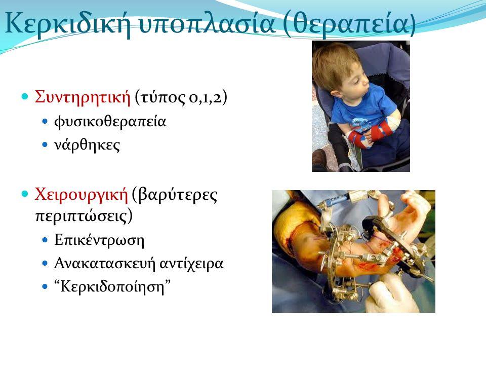 Κερκιδική υποπλασία (θεραπεία)