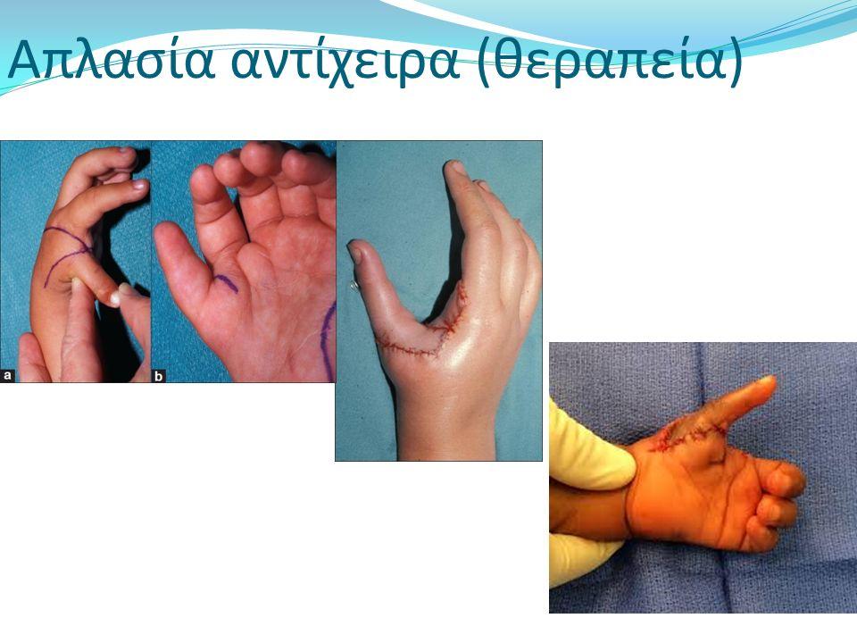 Απλασία αντίχειρα (θεραπεία)