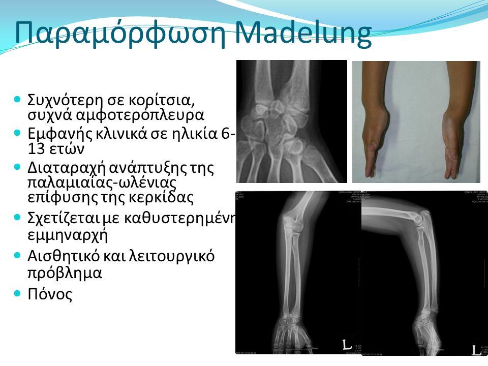 Παραμόρφωση Madelung Madelung deformity