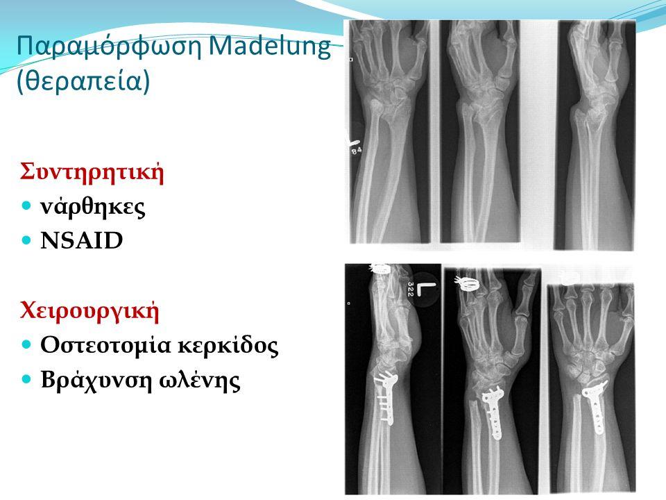 Παραμόρφωση Madelung (θεραπεία)