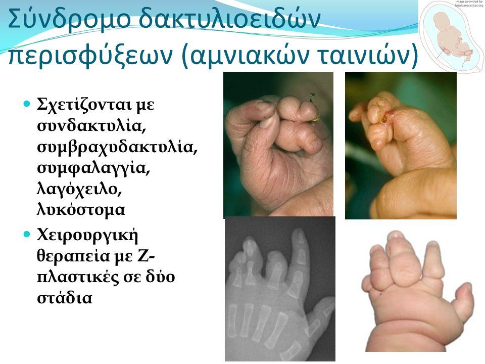 Σύνδρομο δακτυλιοειδών περισφύξεων (αμνιακών ταινιών)