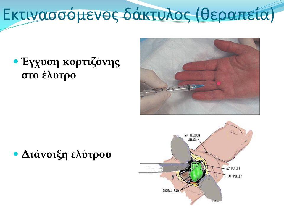 Εκτινασσόμενος δάκτυλος (θεραπεία)