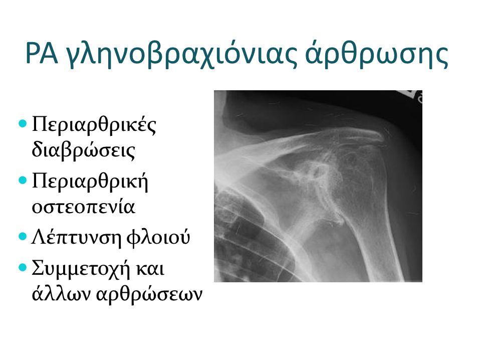 ΡΑ γληνοβραχιόνιας άρθρωσης