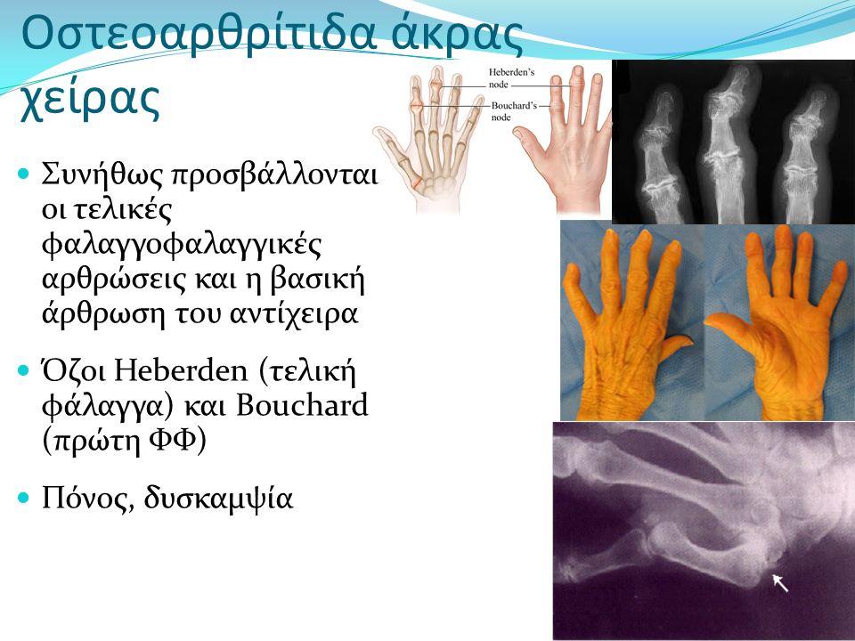 Οστεοαρθρίτιδα άκρας χείρας