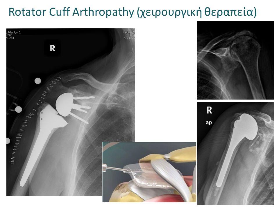 Rotator Cuff Arthropathy (χειρουργική θεραπεία)