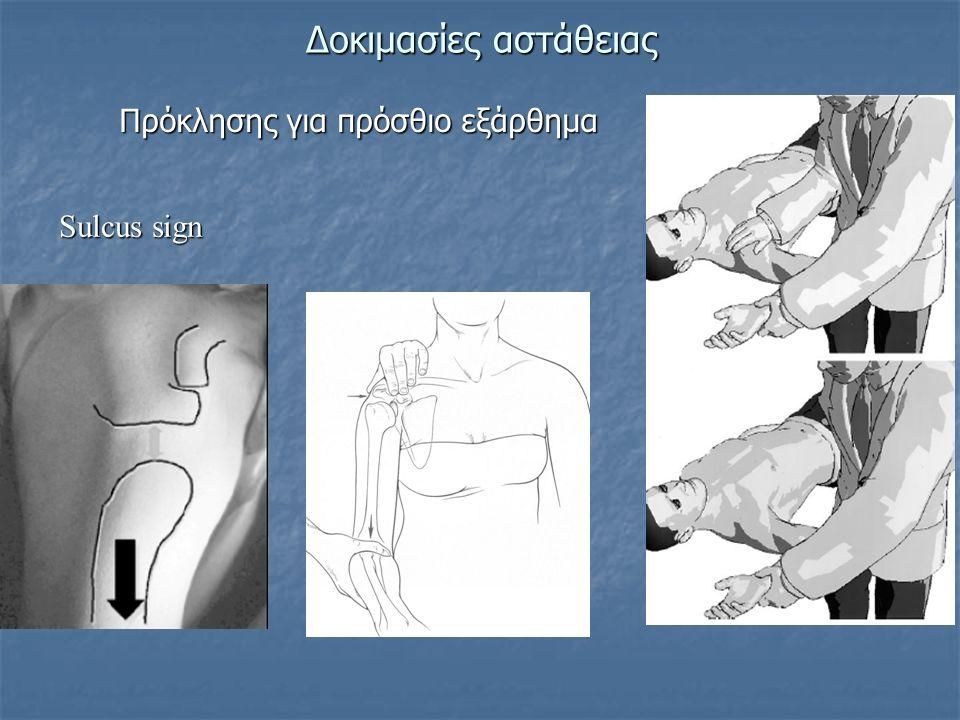 Δοκιμασίες αστάθειας Πρόκλησης για πρόσθιο εξάρθημα Sulcus sign