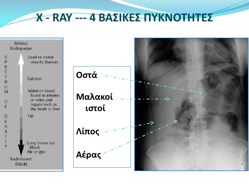 X - RAY --- 4 ΒΑΣΙΚΕΣ ΠΥΚΝΟΤΗΤΕΣ